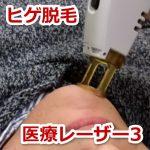 30代独身男のムダ毛処理奮闘記8 医療レーザー脱毛が全然痛くなく感動する
